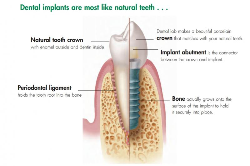 Dental Implant Package special offer