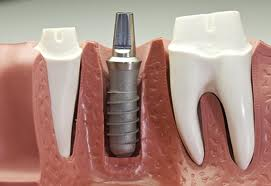 Dental Implant special offer