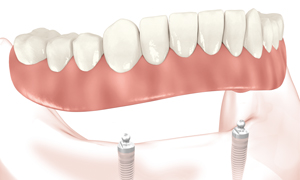 Implants Dentures